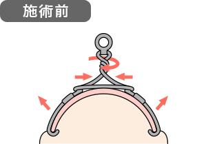 巻き爪矯正 施術前イメージ図