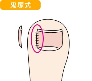 巻き爪矯正 鬼塚式イメージ図