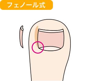 巻き爪矯正 フェノール式イメージ図