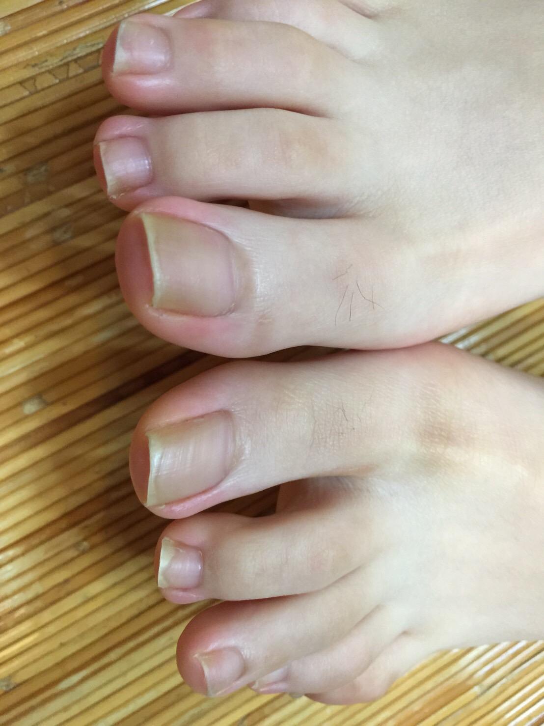 爪の写真1