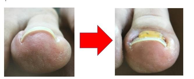 人差し指の爪の状態の編成2