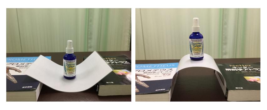 巻き爪 アーチ構造